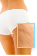 tratamiento de la celulitis con velashape III