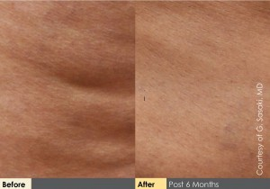 Cellulaze_BeforeAftersLineup_HR2