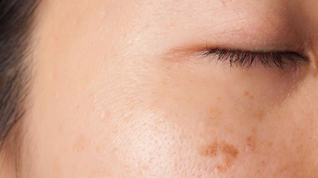 manchas en la piel - rojeces - cicatrices